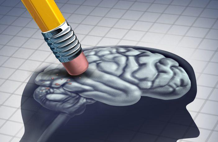brain illustrating dementia